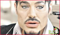 Male lip injections