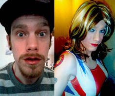 Transgender Surgery Photos Before And After M2f   Rachael Edwards