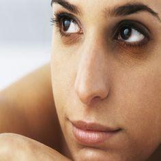 Natural Treatments For Dark Circles