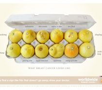 'Know your lemons' breast cancer awareness campaign.