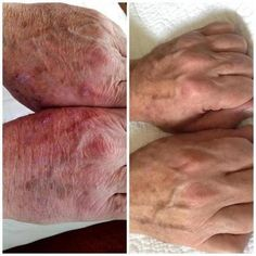 Nerium results after 90 days.  D.Huff  http://jeanmcc.neriumproducts.com