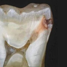 This is a perfect picture to show to your patients on how a cavity started between the teeth where only the floss can clean. The cavity grew all the way down into the nerve which caused the tooth to hurt and could only be treated with either a root canal or to remove the tooth.