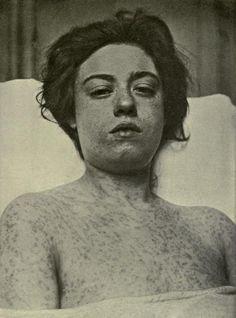 Sick with Smallpox, via Flickr.