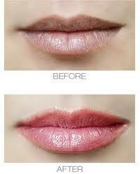 How To Get Plumper Lips - Visit http://www.pricecanvas.com/health/lip-plumper/ For Lip Plumper.