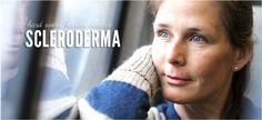 Hard work. Harder disease.  Scleroderma Aware