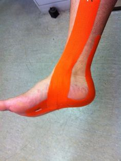 KT Tape plantar fasciitis application