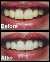 Homemade Teeth Whitening