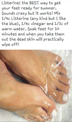 Remove Dead Skin From Feet in 10 MINUTES!  This works, I'm going to do it at least once a week!