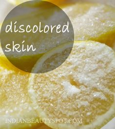 Dip a sliced lemon in sugar, scrub discolored hands and feet, leave on for 15 minutes.