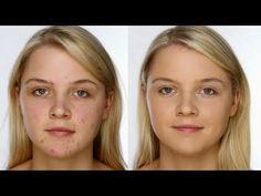 Lisa Eldridge - Acne Covering Make up  Amazing!