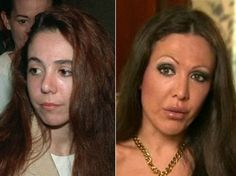 Amy Fisher, the infamous 'Long Island Lolita,' is all grown up … with a new face