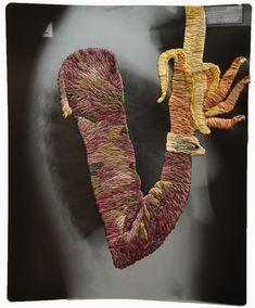 Matthew Cox, Embroidered X-ray.