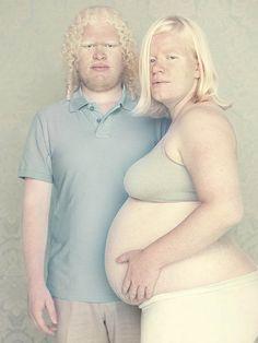 Gustavo Lacerda's Striking Portraits of People withAlbinism albino beauti, albino peopl, gustavo lacerda, photograph, artworks, famili, white, portrait, eye