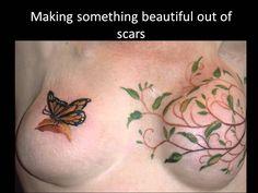 Breast cancer scar tattoos  | maxresdefault.jpg
