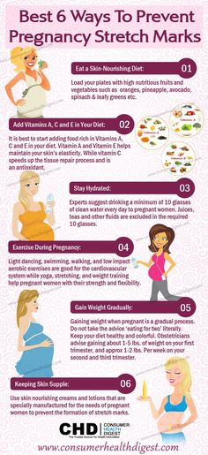 best-6-ways-to-prevent-pregnancy-stretch-marks-infographic