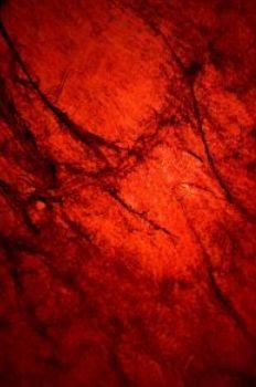 Detectan una probable causa de la enfermedad de Parkinson en la sangre de los enfermos