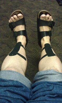 KT Tape shin splints application