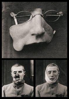 WWI facial prosthesis.
