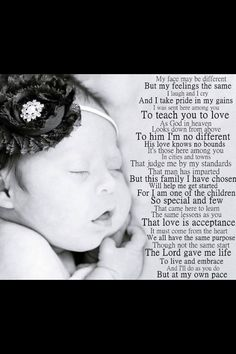 This is perfect - Downs Syndrome