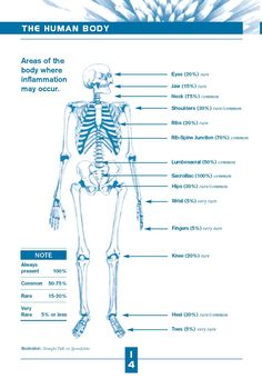 Areas of the body where inflammation may occur with AS. Thank you SAA.