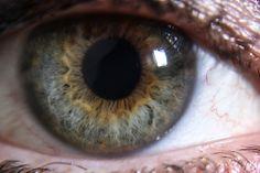 lynda olsen central heterochromia-1