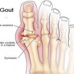 Eight Best and Effective Herbs For The Treatment of Gout