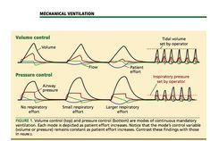 mechanical ventilation modes
