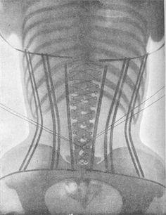 Tight. X-ray corset. Boneshifting with boning.
