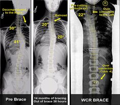 Reversing Scoliosis and Brace Treatment of a Proximal Structural Curve