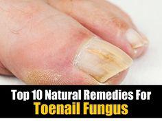 Top 10 Natural Remedies For Toenail Fungus