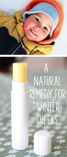 "A Natural Remedy for Chapped ""Winter Cheeks"" 