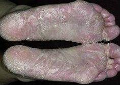 Елена малышева грибок ногтей на ногах видео