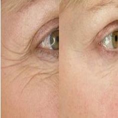 Seven Ways to Wipe Eye Wrinkles Off Your Face