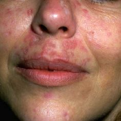 Natural Cures For Lupus