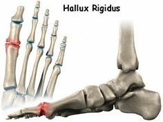 "Hallux rigidus literally means ""stiff great toe""; however, limitation of big toe motion is only one element of the range of symptoms that constitute the diagnosis of hallux rigidus. http://www.plateaufoot.com/theres-help-for-hallux-rigidus.html"
