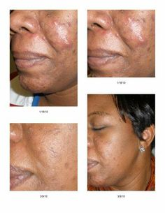 Client used Rodan + Fields Unblemish Skin Care Line. The results are amazing! Learn more here: https://kberney.myrandf.com/Shop/Unblemish