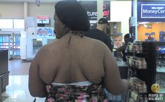 Whoever invents the first bra for your back will make a fortune selling them at WalMart