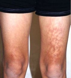 How to Heal Bruises Fast advise