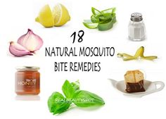 Ease the Itch with 18 Natural Mosquito Bite Remedies - ♥ Real Beauty Spot ♥
