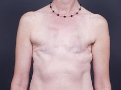 Mastectomy breast reconstruction on pinterest for Tattooed nipples after reconstruction