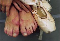 i told you i had ballerina feet!