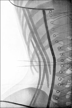 X-Ray images of corsets from 1908 by Dr. Ludovic O'Followell
