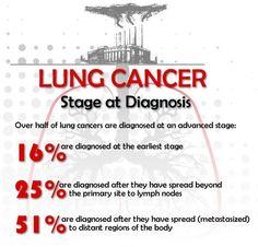 Lung cancer #askdoctorhansen