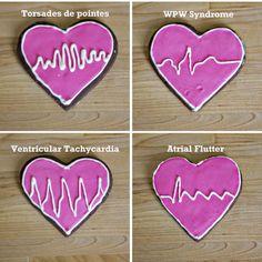 EKG cookies (part 2)