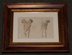 "siamese twins french 1851 hand coloured engraving 9 x 11"" $260 HOLD"