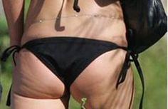 Information about cellulite problem and tips to avoid them