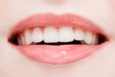 Dental caries, Tooth enamel, Weston Price, Tooth, Dentistry, Dental, normal blood sugar, blood sugar level, tooth cavity, remineralization, ...