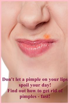 If you have a #pimple on your lip, don't let it spoil your day, get rid of it fast with the tips right here at http://pimpletreatmenttips.com/how-to-get-rid-of-pimples-on-lips/