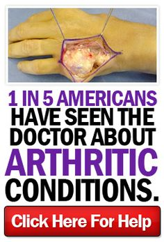 Click Here: (http://ArthritisRelief.healthsupplementproducts.com/Provailen.php) Your arthritis is caused by your autoimmune system attacking your joints and causing inflammation. Provailen uses Reishi mushroom as part of its 3-in-1 formula to rebalance your immune system and relieve your inflammation. Provailen is completely natural and helps to relieve most arthritis symptoms fast and effectively.