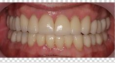 full mouth reconstruction : Cloyce T. had cracked and worn down teeth. His lower teethwere crowded and it was difficult to keep his teeth properly clean.After full mouth reconstruction all his teeth are straight. They look great and he is very happy with the natural-looking results! http://www.rankipedia.com/dentist/beforeafterajax
